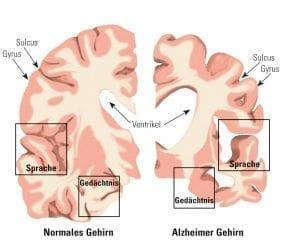 Hirnschnitte eines normalen und eines Alzheimer Gehirns