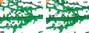 Rückbildung dendritischer Dornen an den Nervenzellen, Grafik